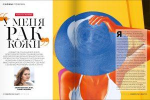 Проспект.Медиа, Ульяна против рака, #ракдурак, Ульяна Шкатова, меланома, Cosmopolitan Beauty